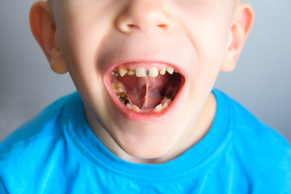 How does sugar rot your teeth?